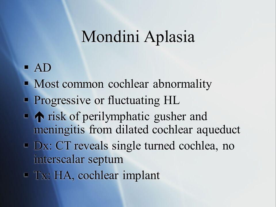 Mondini Aplasia AD Most common cochlear abnormality