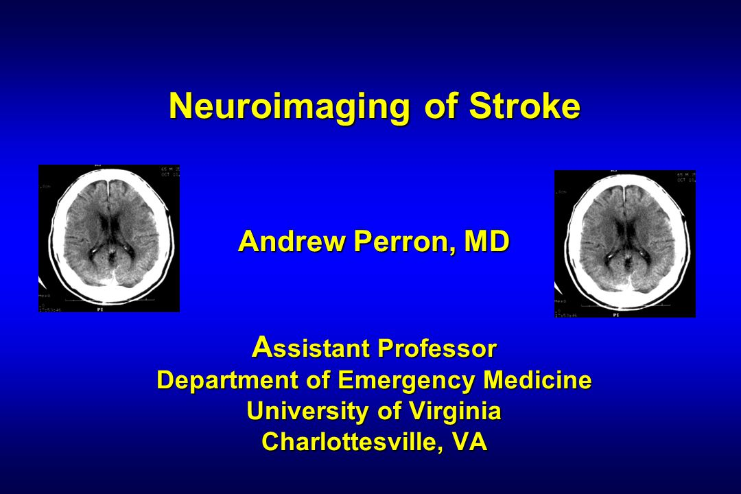 Neuroimaging of Stroke Andrew Perron, MD Assistant Professor Department of Emergency Medicine University of Virginia Charlottesville, VA
