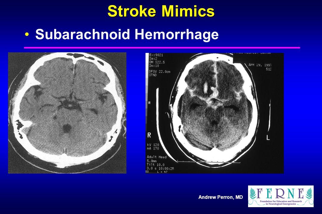 Stroke Mimics Subarachnoid Hemorrhage