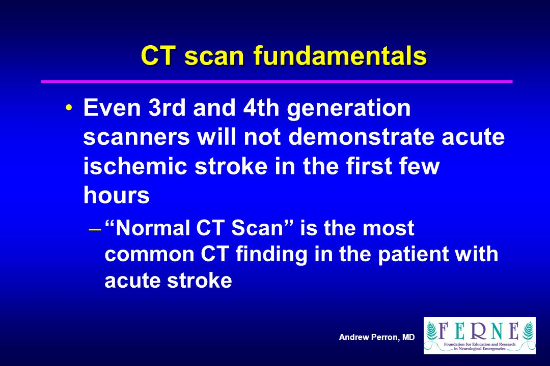 CT scan fundamentals Even 3rd and 4th generation scanners will not demonstrate acute ischemic stroke in the first few hours.
