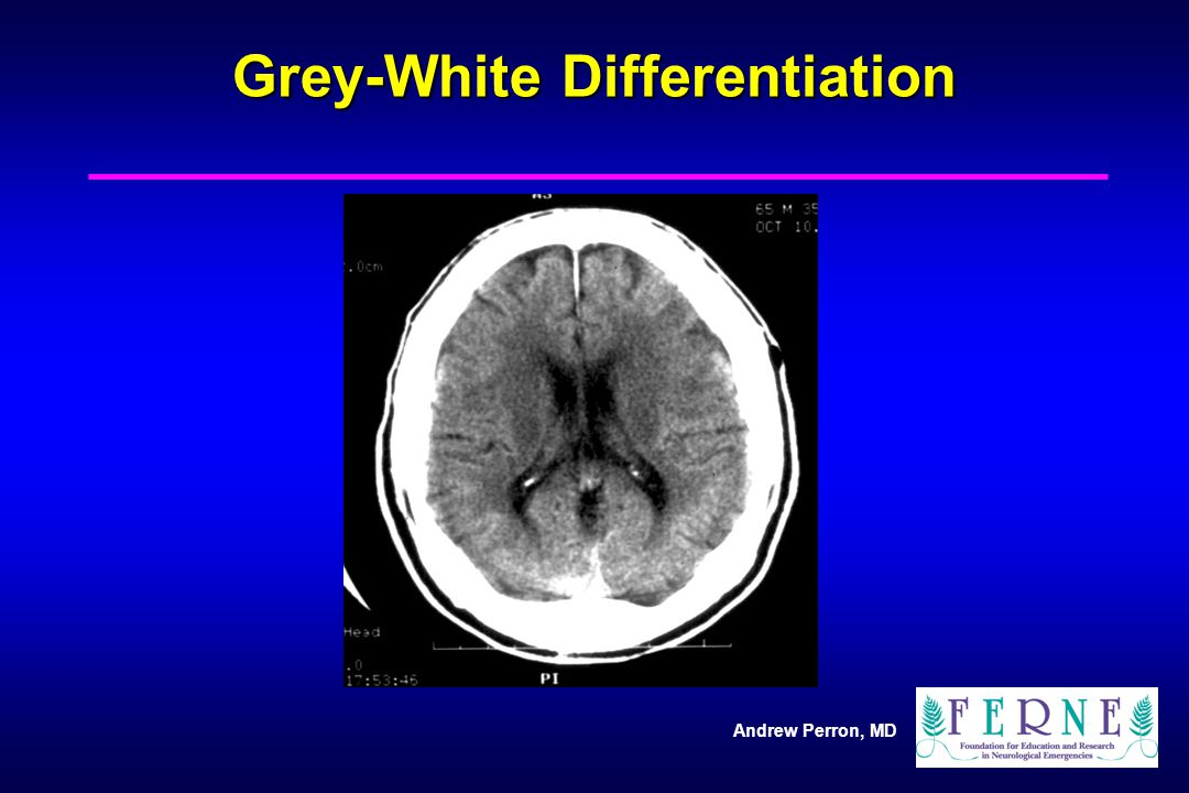 Grey-White Differentiation