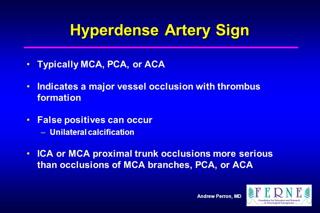 Hyperdense Artery Sign