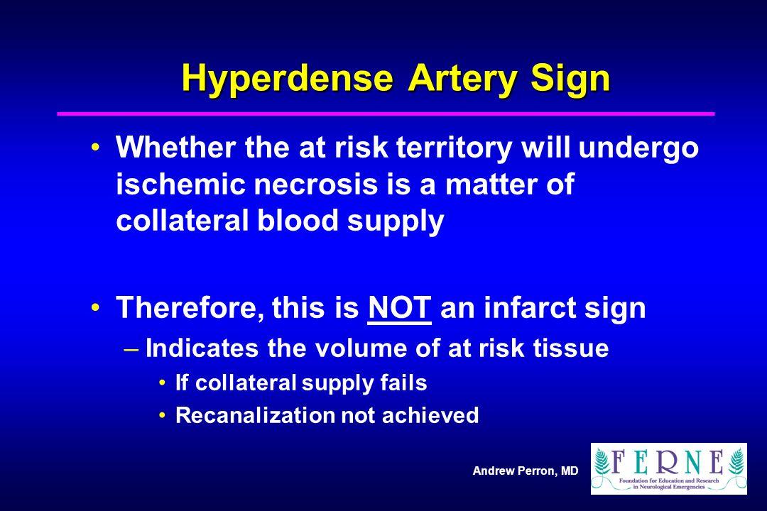 Hyperdense Artery Sign
