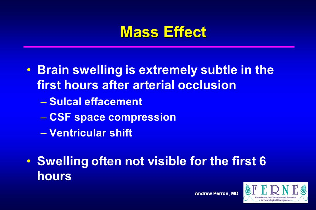 Mass Effect Brain swelling is extremely subtle in the first hours after arterial occlusion. Sulcal effacement.