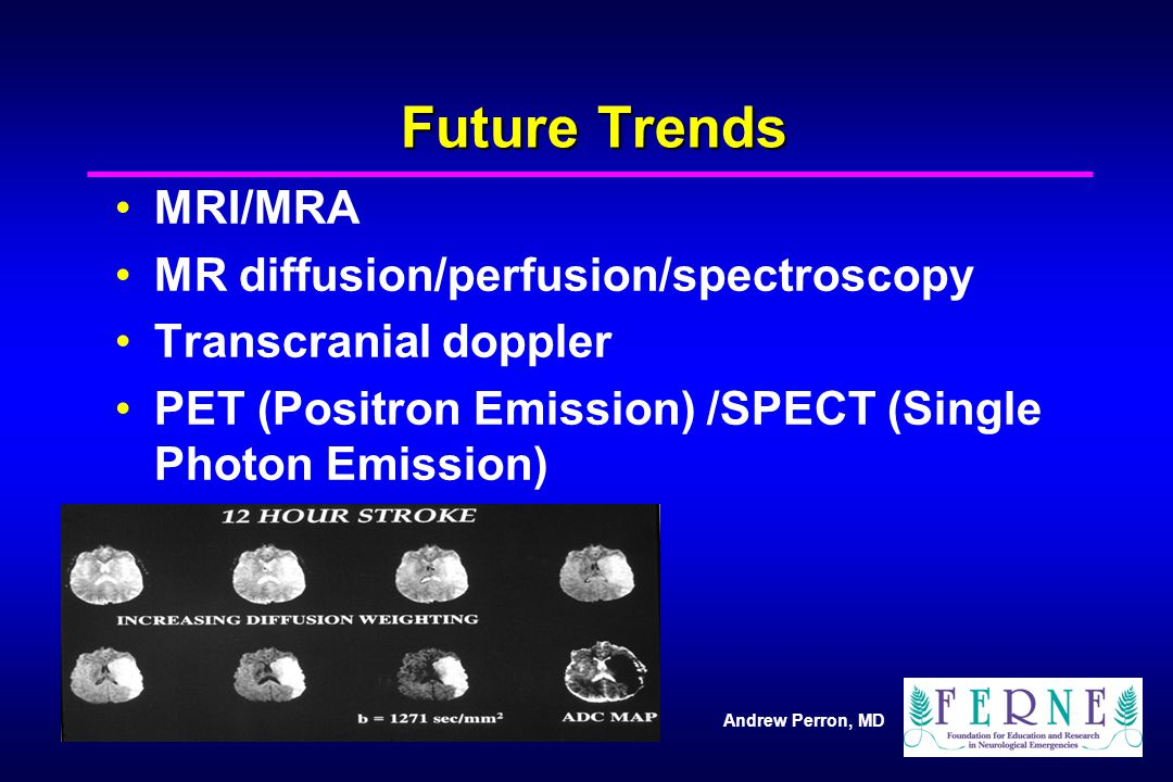 Future Trends MRI/MRA MR diffusion/perfusion/spectroscopy