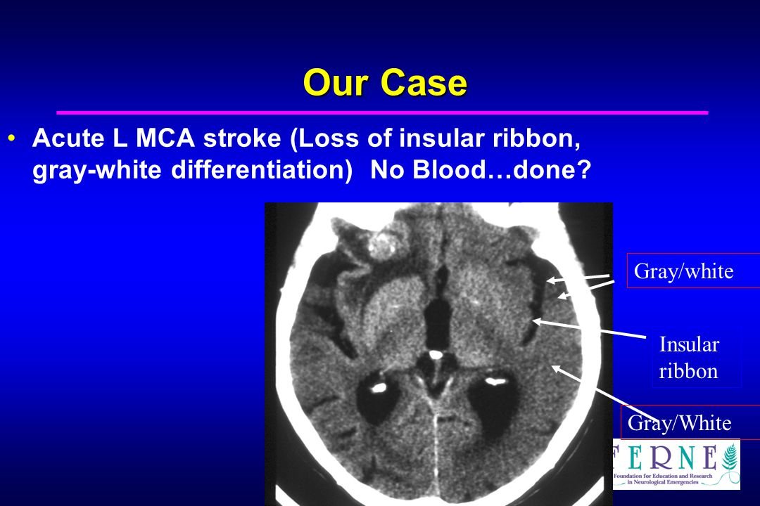 Our Case Acute L MCA stroke (Loss of insular ribbon, gray-white differentiation) No Blood…done Gray/white.