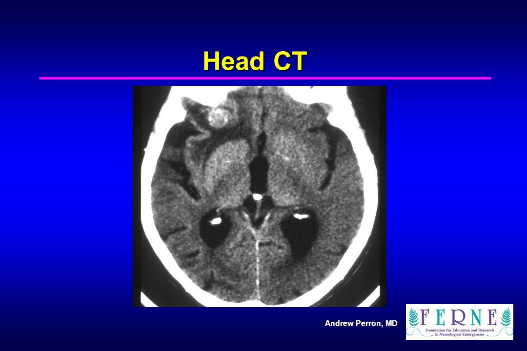 Head CT