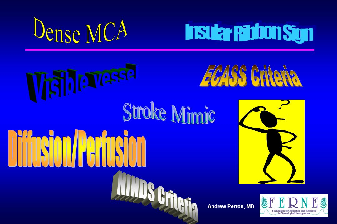 Dense MCA Insular Ribbon Sign ECASS Criteria Visible vessel