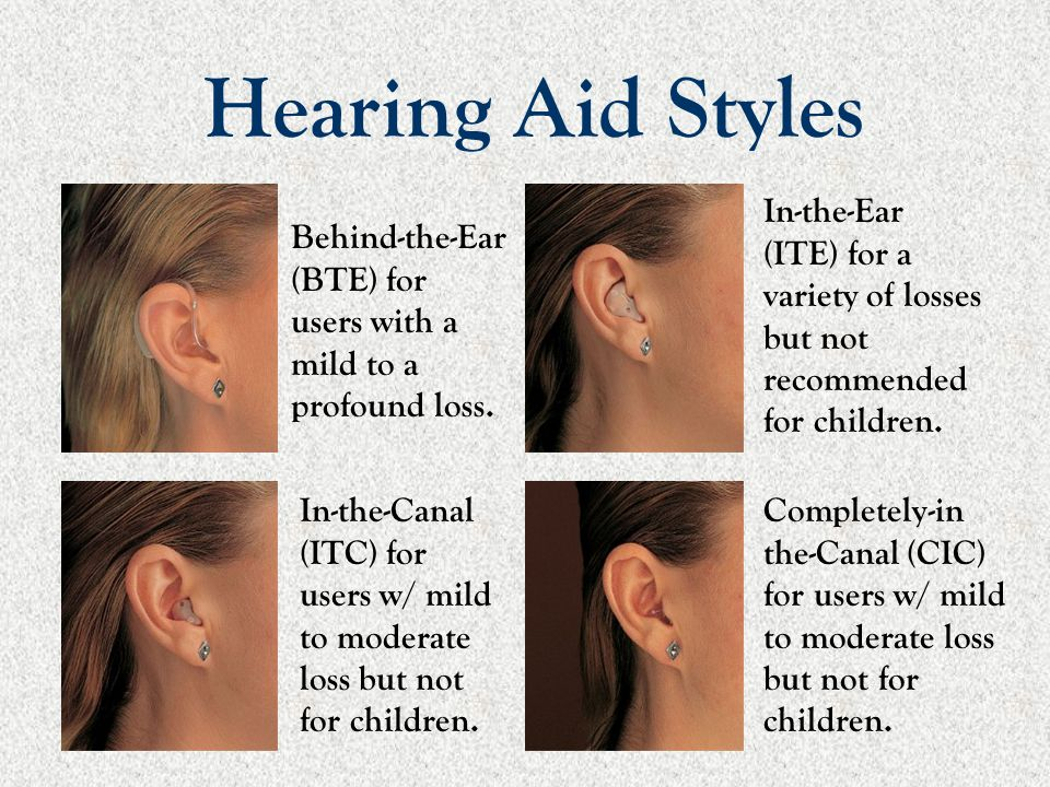 Hearing Aid Styles In-the-Ear (ITE) for a variety of losses but not recommended for children.