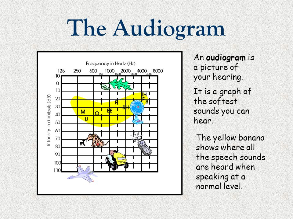 The Audiogram An audiogram is a picture of your hearing.