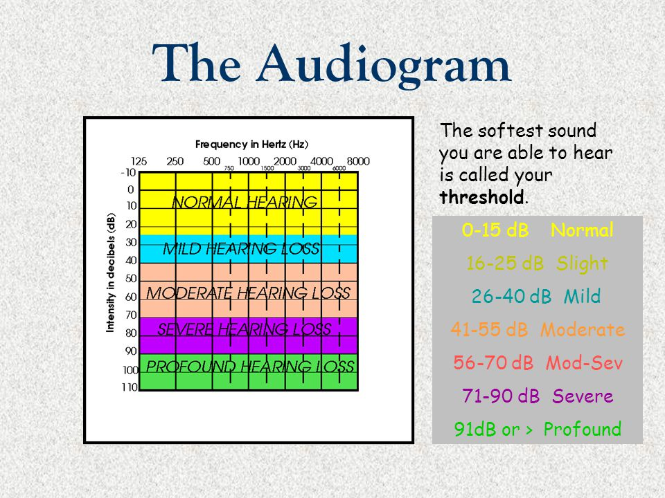 The Audiogram The softest sound you are able to hear is called your threshold. 0-15 dB Normal. 16-25 dB Slight.