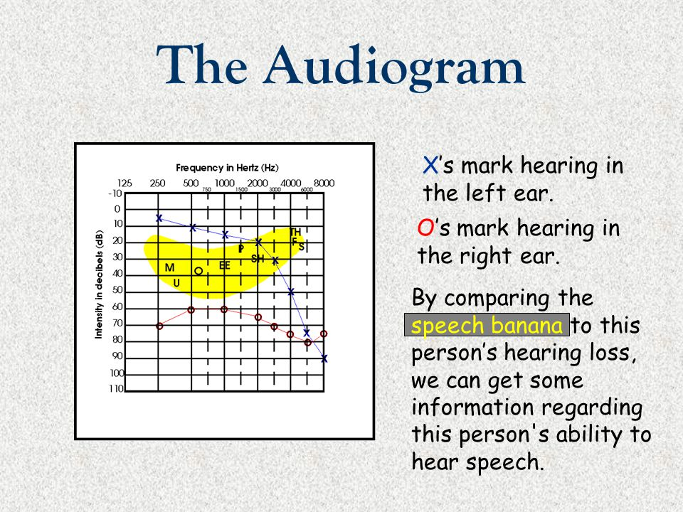 The Audiogram X's mark hearing in the left ear.