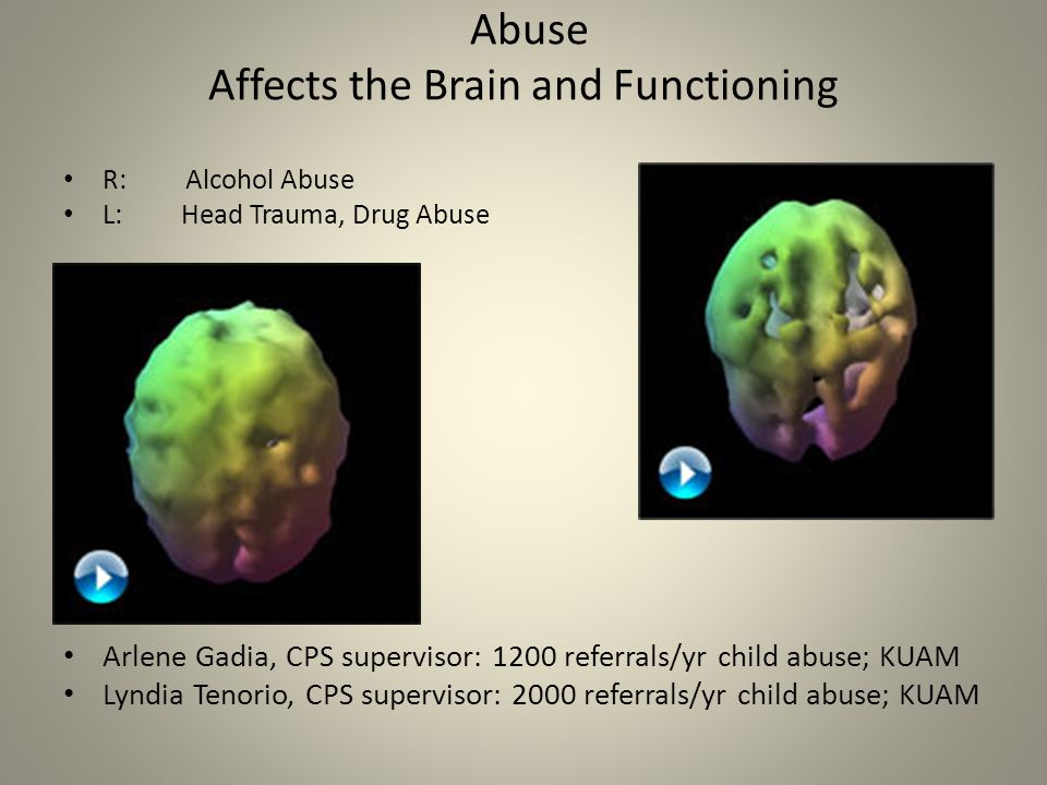 Abuse Affects the Brain and Functioning