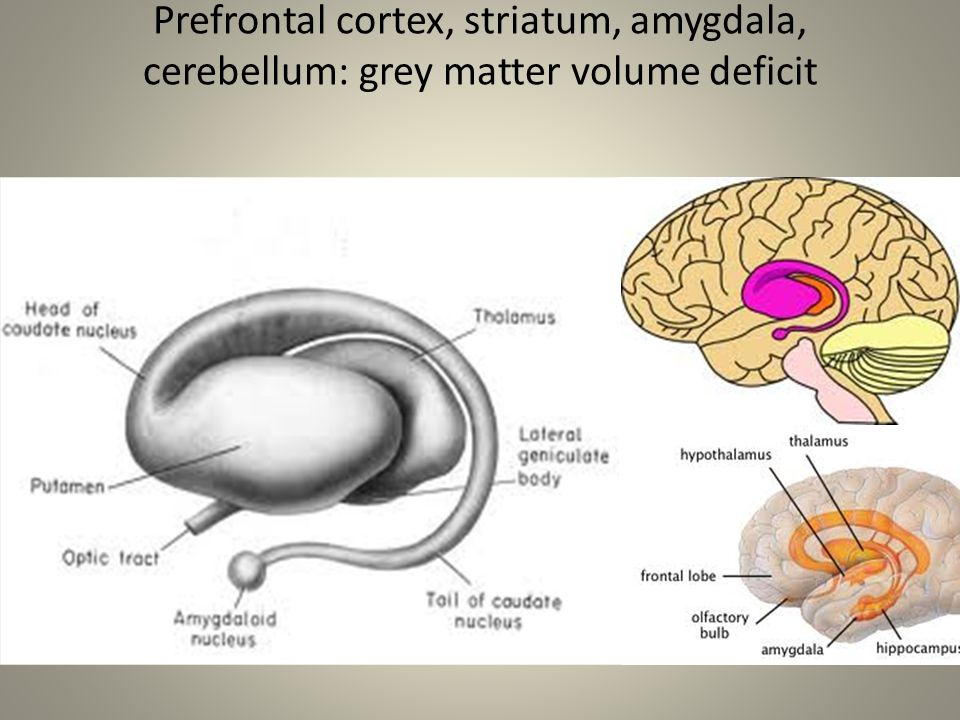 Prefrontal cortex, striatum, amygdala, cerebellum: grey matter volume deficit