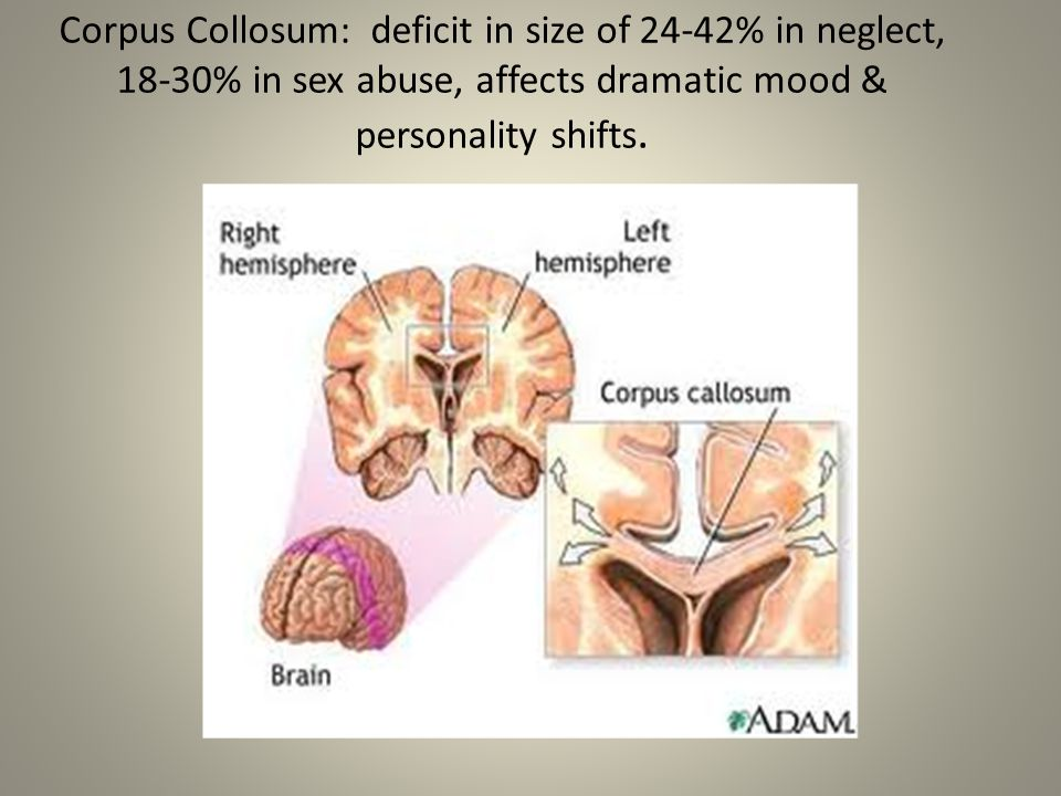 Corpus Collosum: deficit in size of 24-42% in neglect, 18-30% in sex abuse, affects dramatic mood & personality shifts.