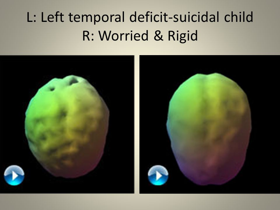 L: Left temporal deficit-suicidal child R: Worried & Rigid