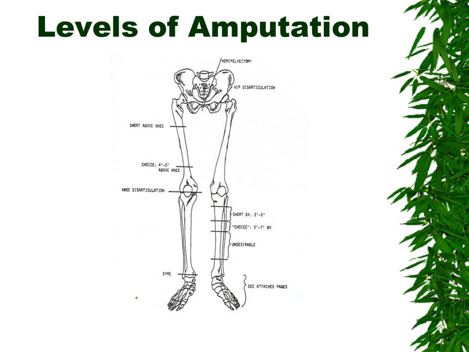 Levels of Amputation