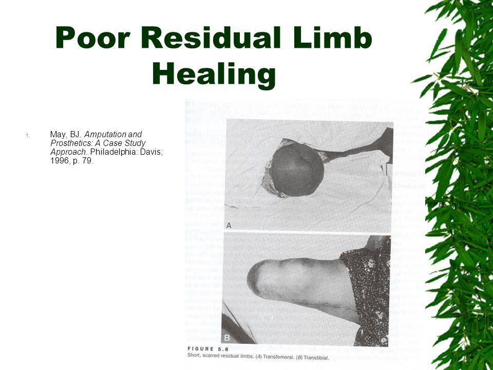 Poor Residual Limb Healing