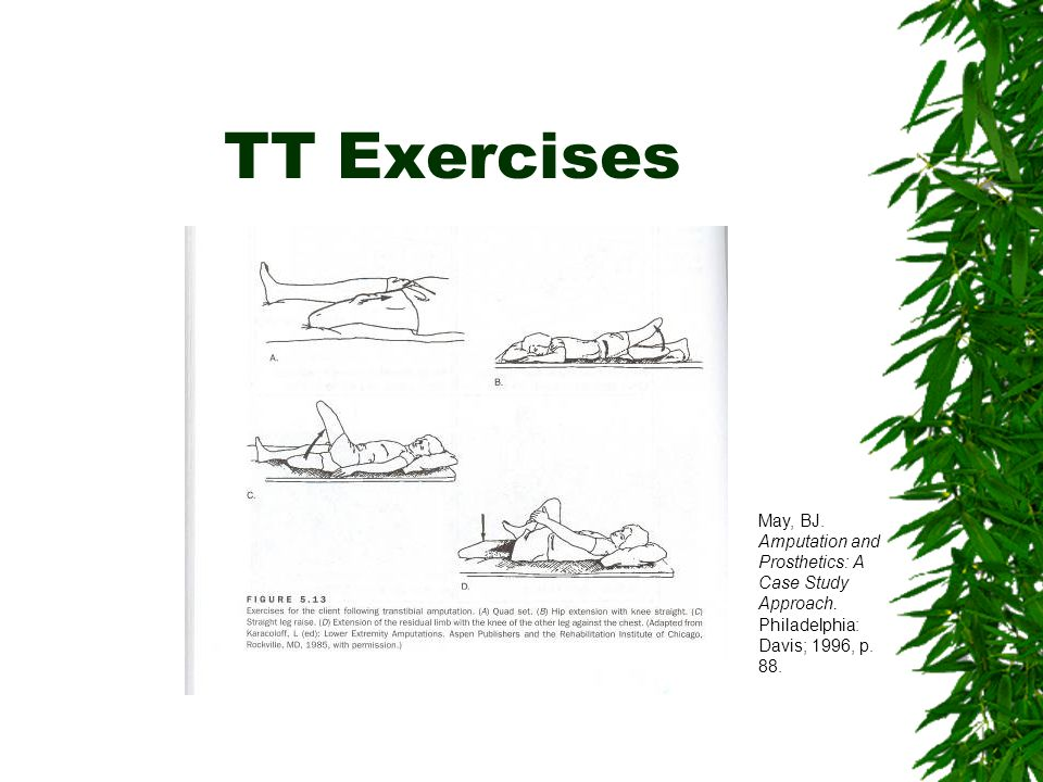 TT Exercises May, BJ. Amputation and Prosthetics: A Case Study Approach.