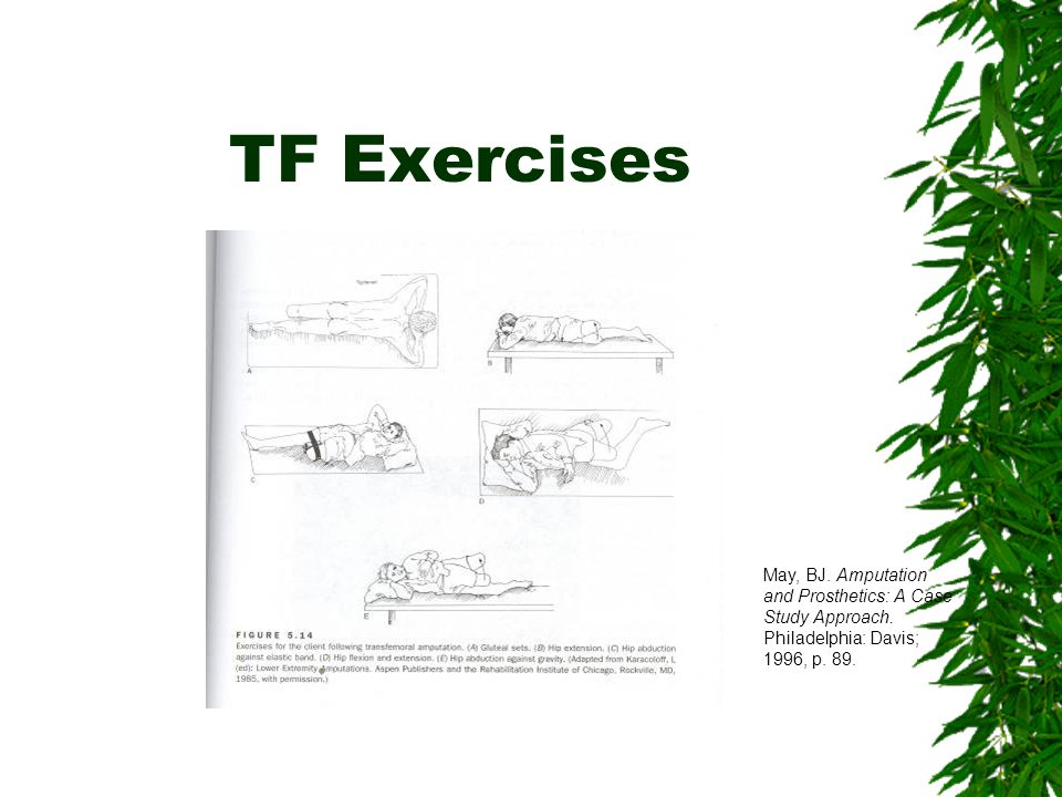 TF Exercises May, BJ. Amputation and Prosthetics: A Case Study Approach.