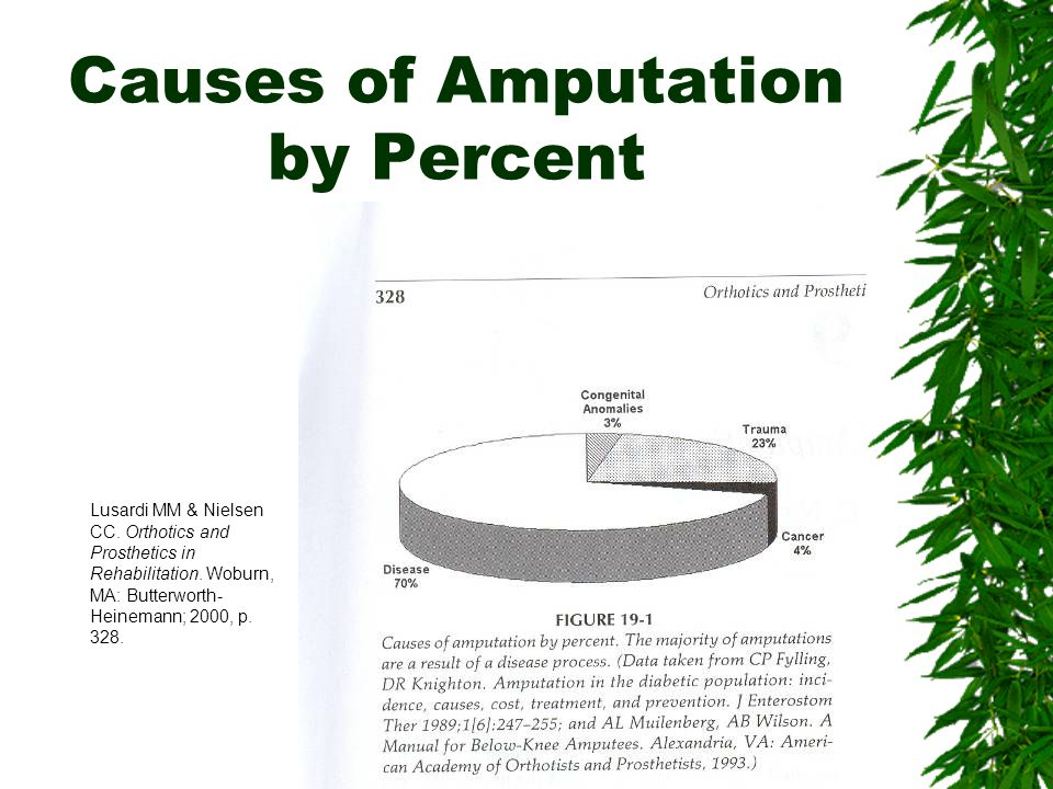 Causes of Amputation by Percent