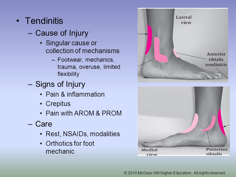 Tendinitis Cause of Injury Signs of Injury Care