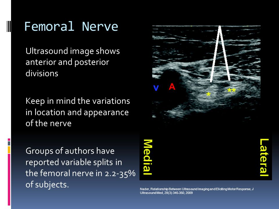 Femoral Nerve Ultrasound image shows anterior and posterior divisions
