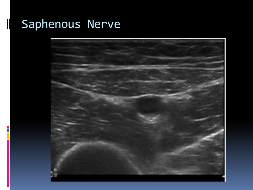 Saphenous Nerve