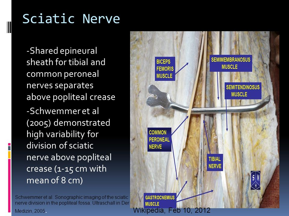 Sciatic Nerve -Shared epineural sheath for tibial and common peroneal nerves separates above popliteal crease.