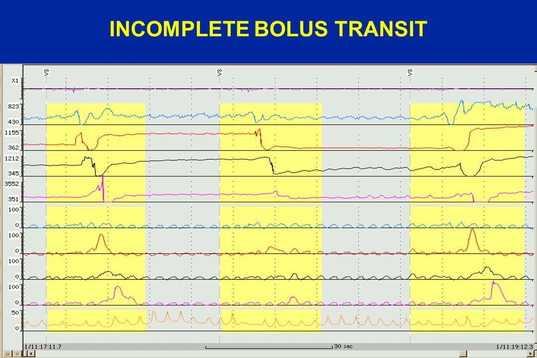INCOMPLETE BOLUS TRANSIT