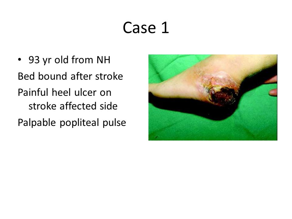 Case 1 93 yr old from NH Bed bound after stroke