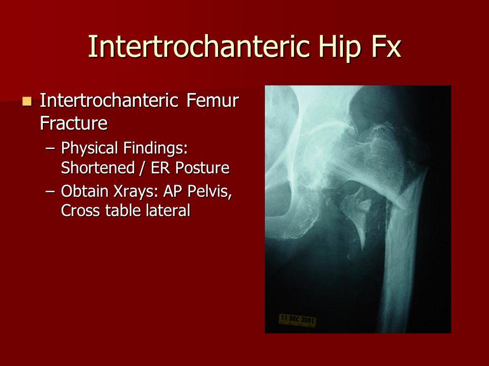 Intertrochanteric Hip Fx