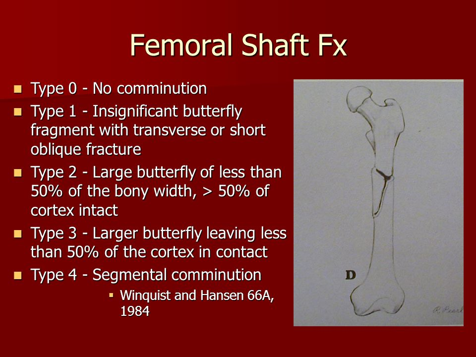 Femoral Shaft Fx Type 0 - No comminution