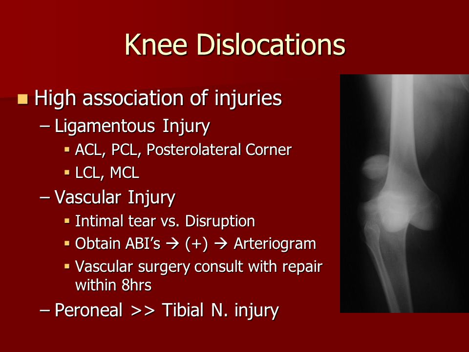 Knee Dislocations High association of injuries Ligamentous Injury