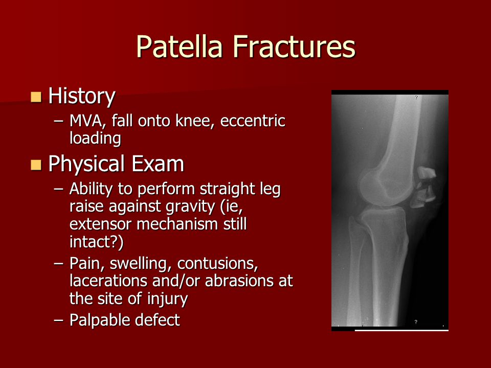 Patella Fractures History Physical Exam
