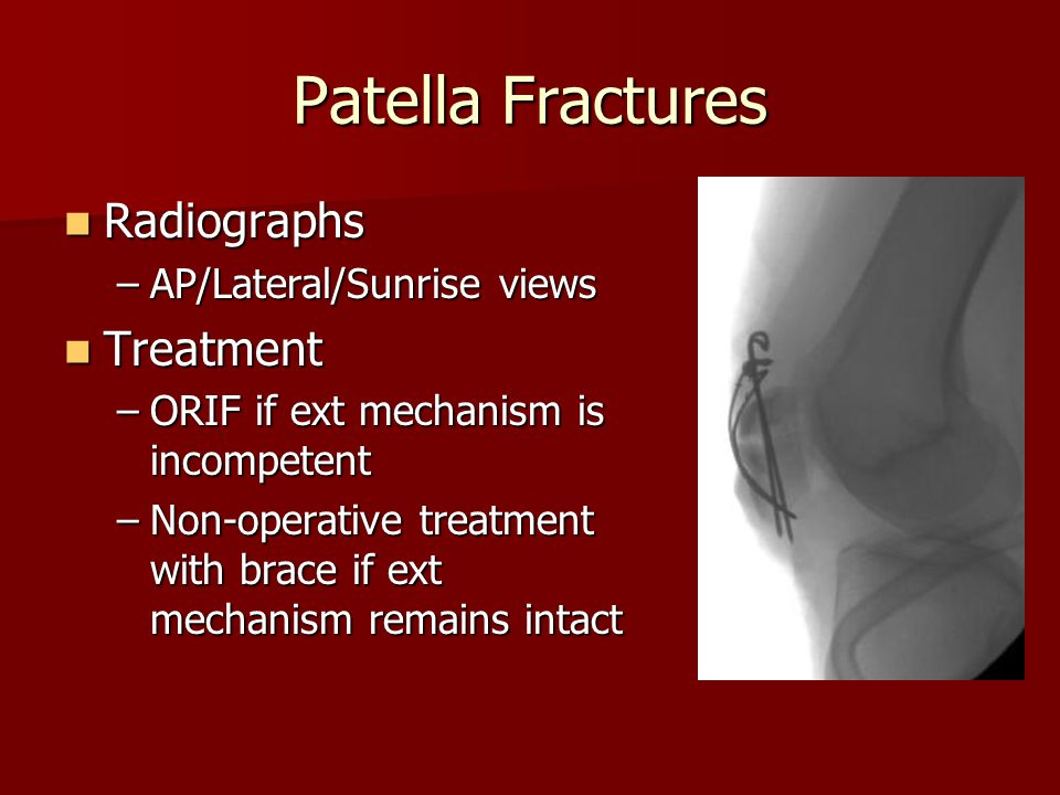 Patella Fractures Radiographs Treatment AP/Lateral/Sunrise views