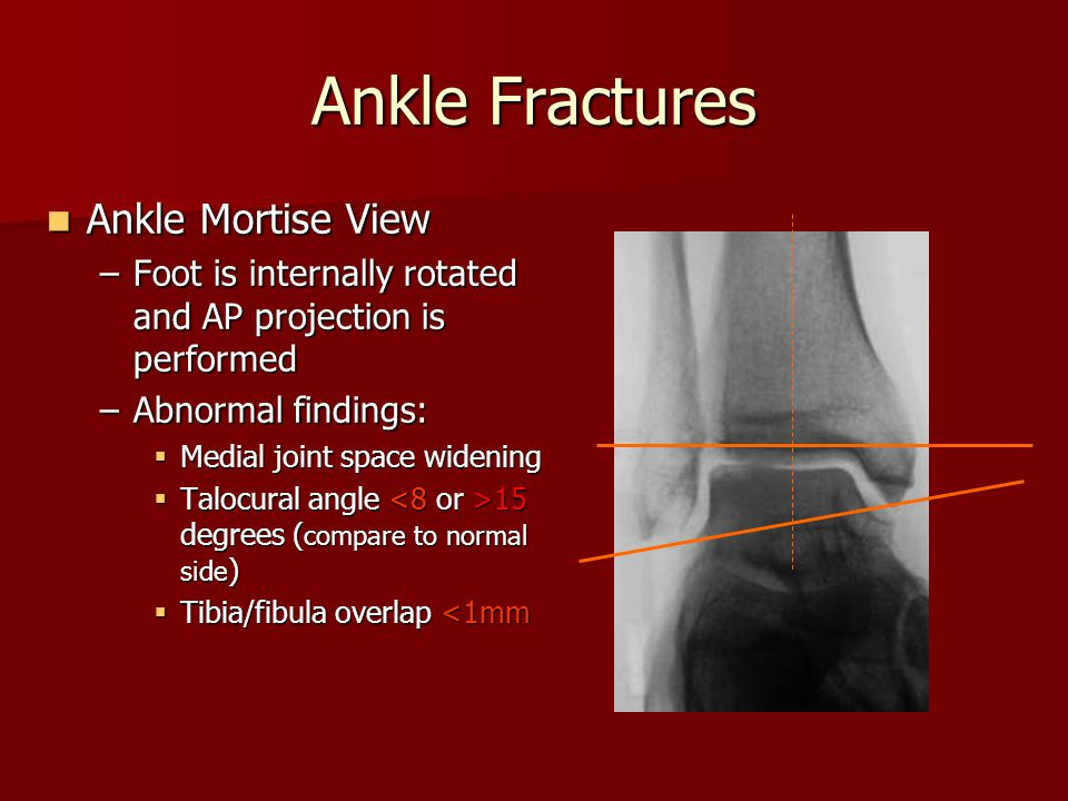 Ankle Fractures Ankle Mortise View