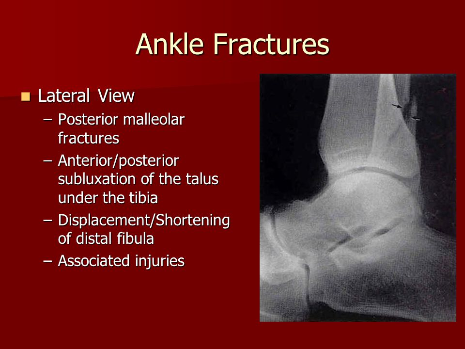 Ankle Fractures Lateral View Posterior malleolar fractures