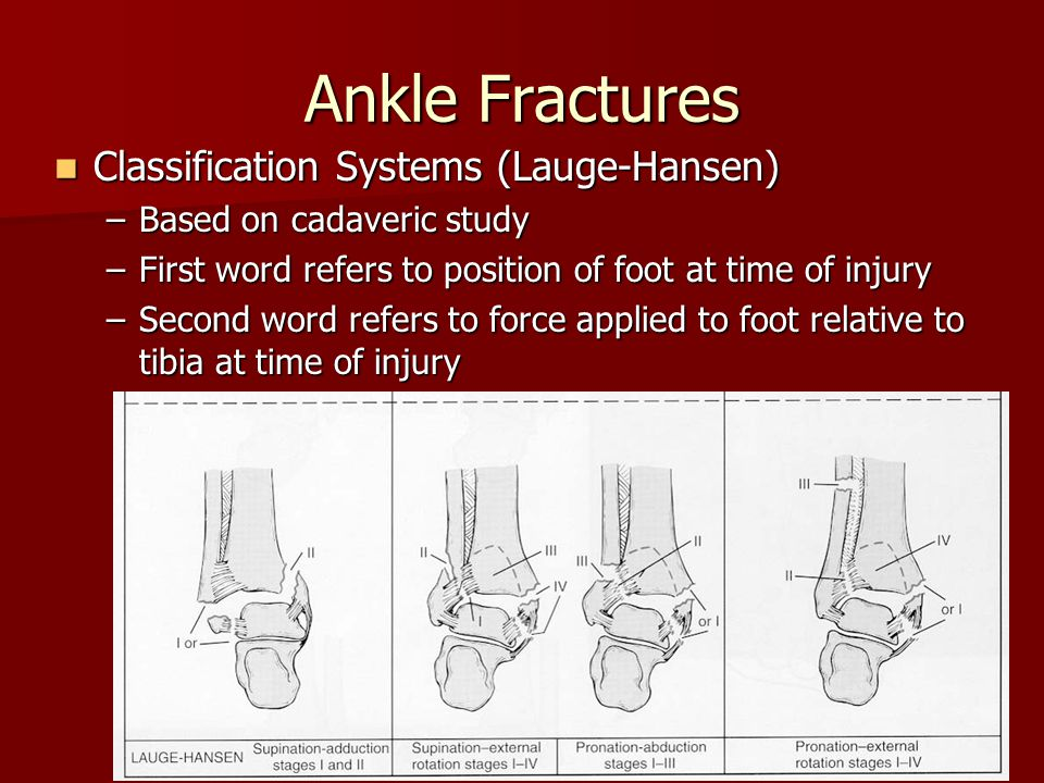 Ankle Fractures Classification Systems (Lauge-Hansen)