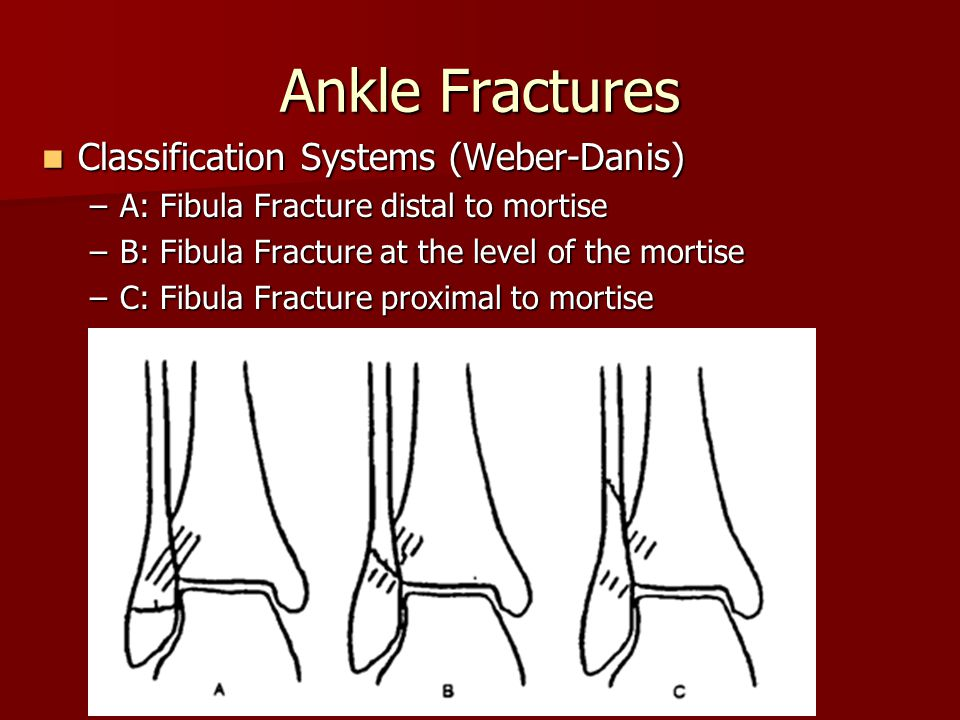 Ankle Fractures Classification Systems (Weber-Danis)