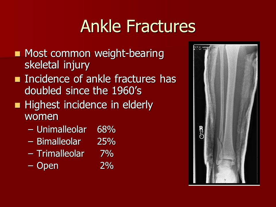 Ankle Fractures Most common weight-bearing skeletal injury