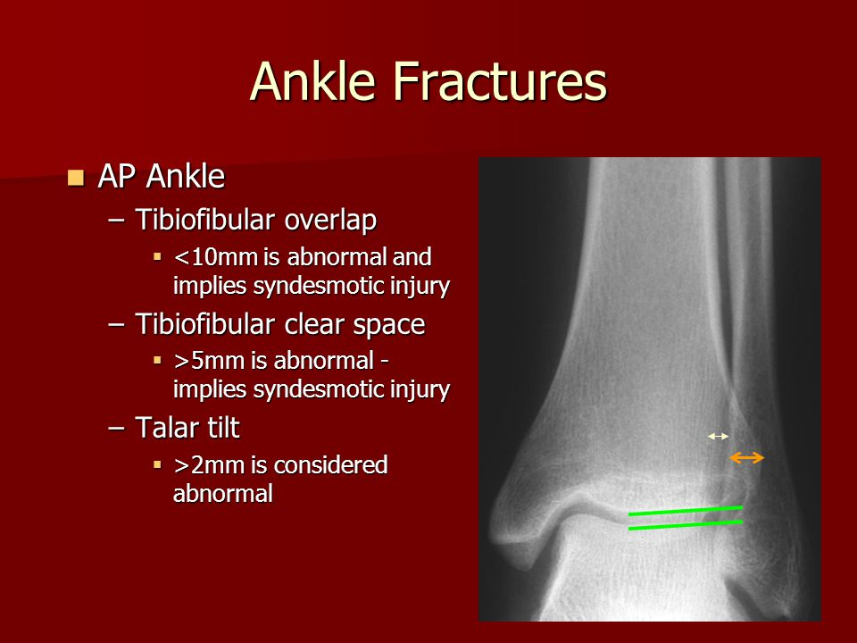 Ankle Fractures AP Ankle Tibiofibular overlap Tibiofibular clear space