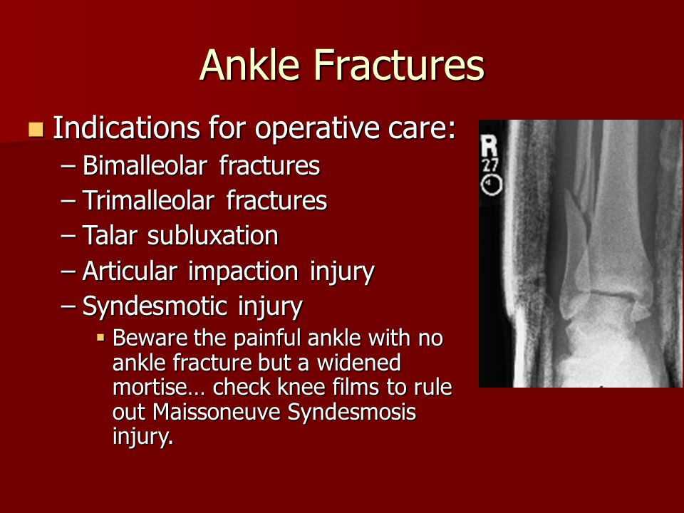 Ankle Fractures Indications for operative care: Bimalleolar fractures