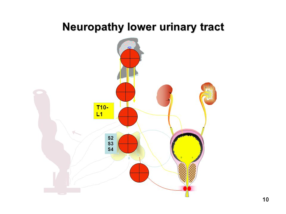 Neuropathy lower urinary tract