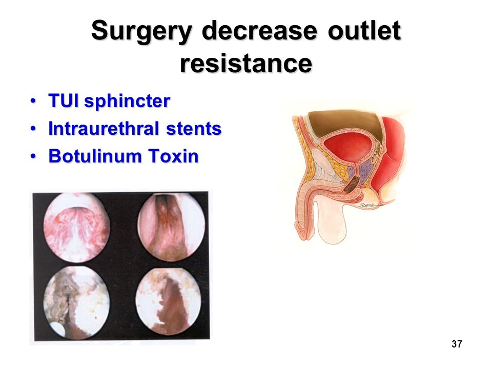 Surgery decrease outlet resistance