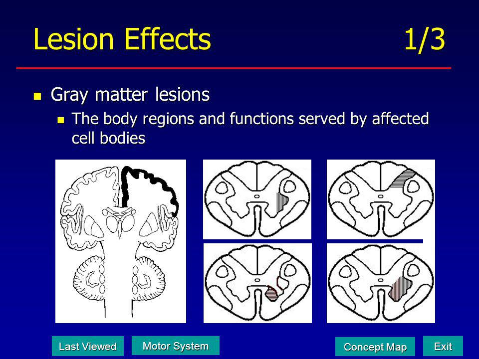 Lesion Effects 1/3 Gray matter lesions