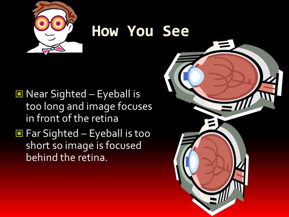 How You SeeNear Sighted – Eyeball is too long and image focuses in front of the retina.