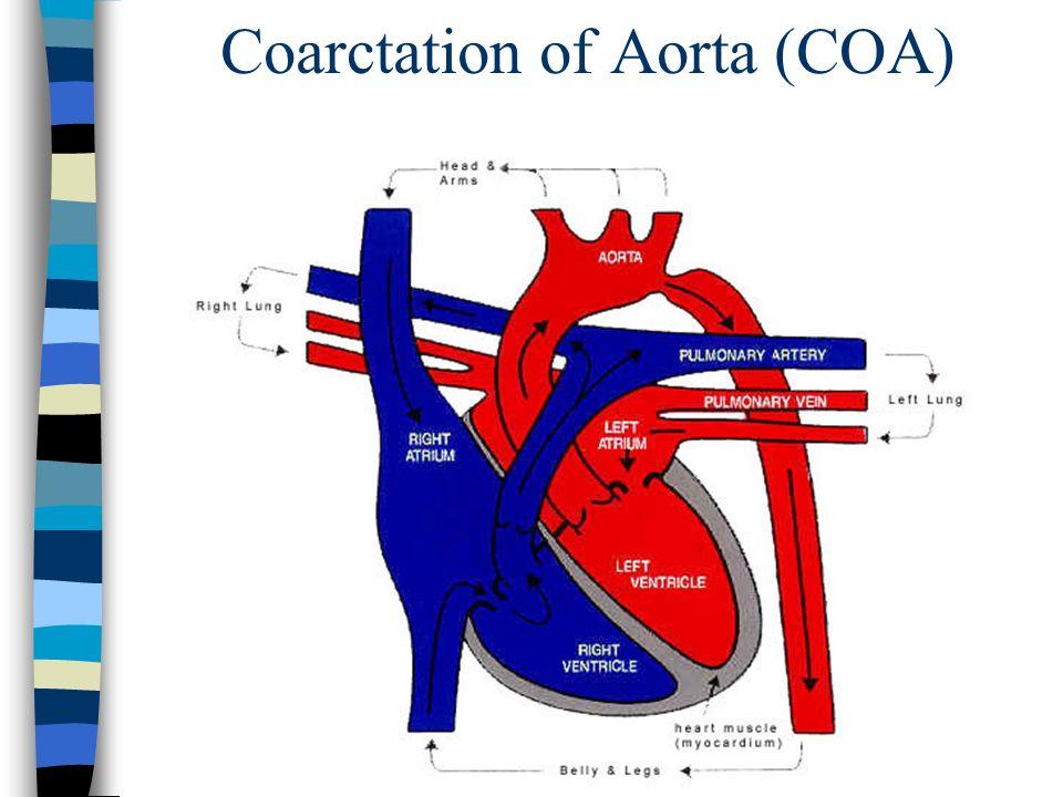 Coarctation of Aorta (COA)