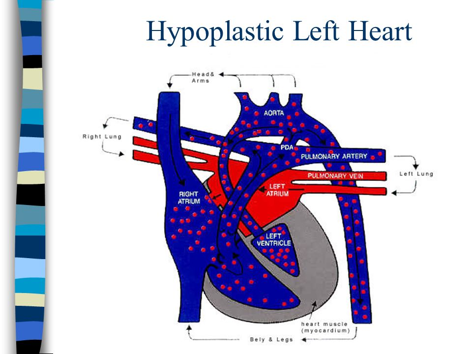 Hypoplastic Left Heart