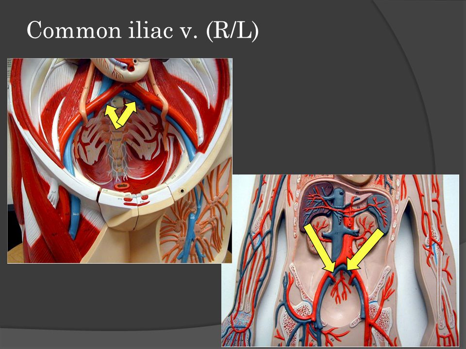 Common iliac v. (R/L)